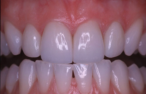 conservative Ceramic Veneers after