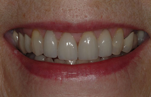 crooked tooth after