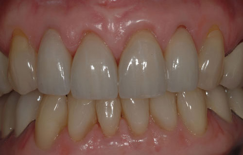 gum level and veneers after