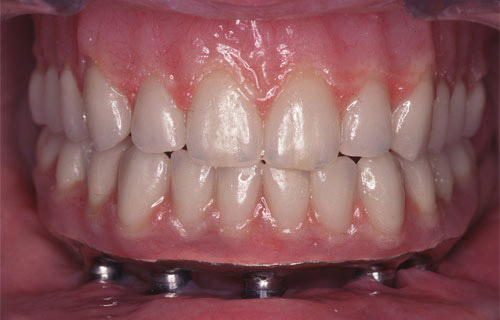 Before and after case by Mercer Island Dentist for implant supported bridge at Goichi Shiotsu, DDS: photo of mouth, after