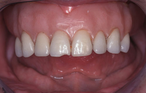 Before and after case by Mercer Island Dentist for implant supported bridge at Goichi Shiotsu, DDS: photo of mouth, before