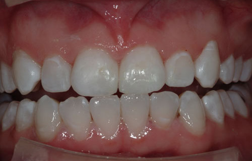After a patient needed whitening and boding by her Mercer Island Dentist, Goichi Shiotsu, DDS.
