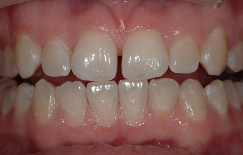 Before a patient needed whitening and boding by her Mercer Island Dentist, Goichi Shiotsu, DDS.