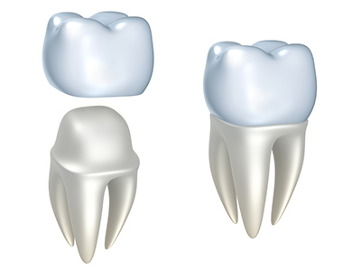 How Dental Cement Works to Hold Crowns in Place