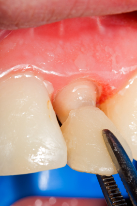How to Manage a Tooth with a Missing Crown Until It Can Get Repaired