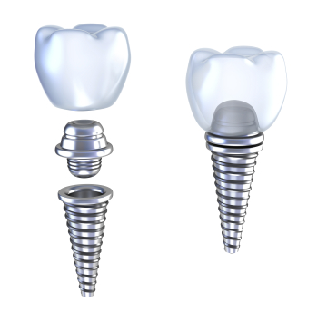 Diagram of dental Implants from Goichi Shiotsu, DDS in Mercer Island