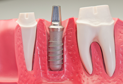 The dental implants post is attached to the bone structure of the mouth by Mercer Island Dentist, Goichi Shiotsu, DDS.